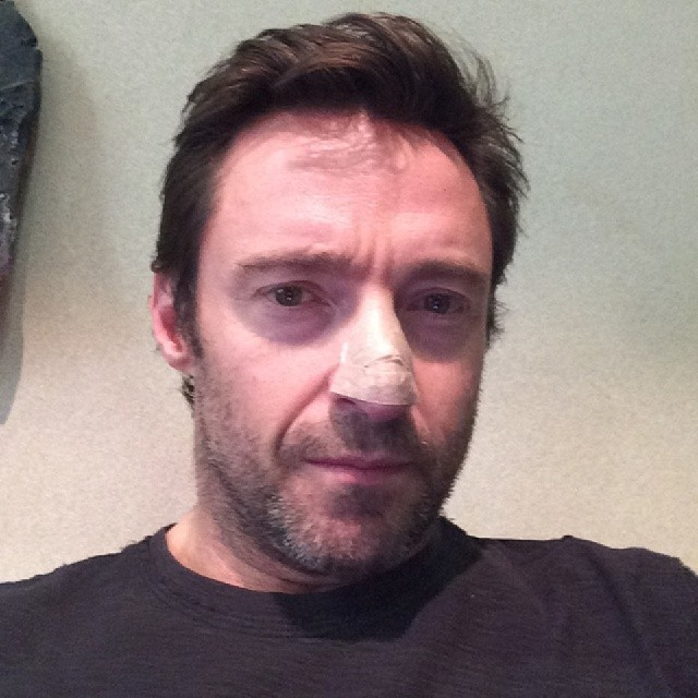 Hugh Jackman Reveals His Post Skin Cancer Bandages