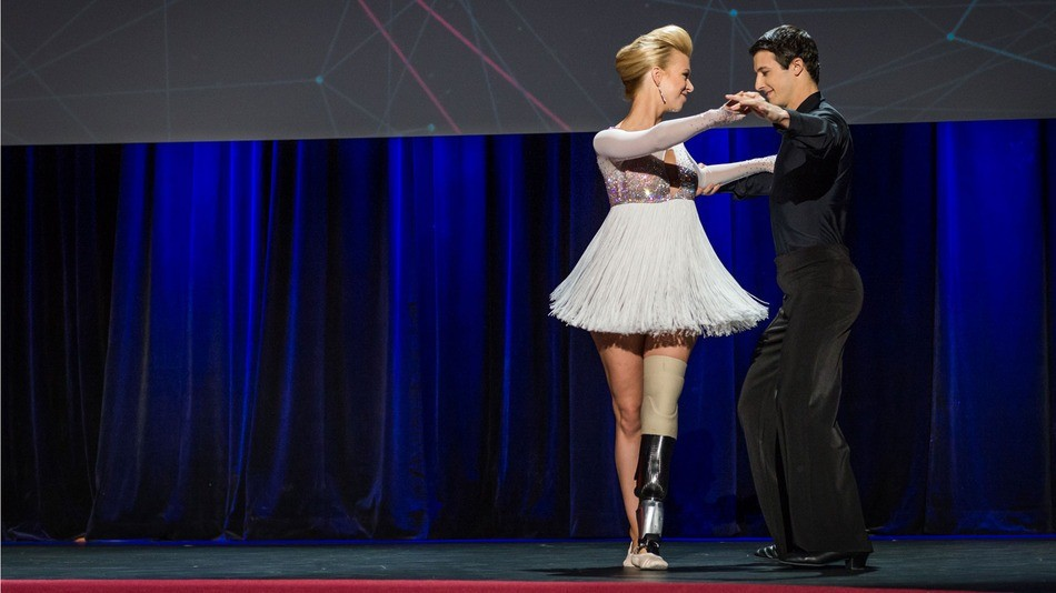 Boston Bombing Survivor Dances Again With Help Of Prosthetic Leg