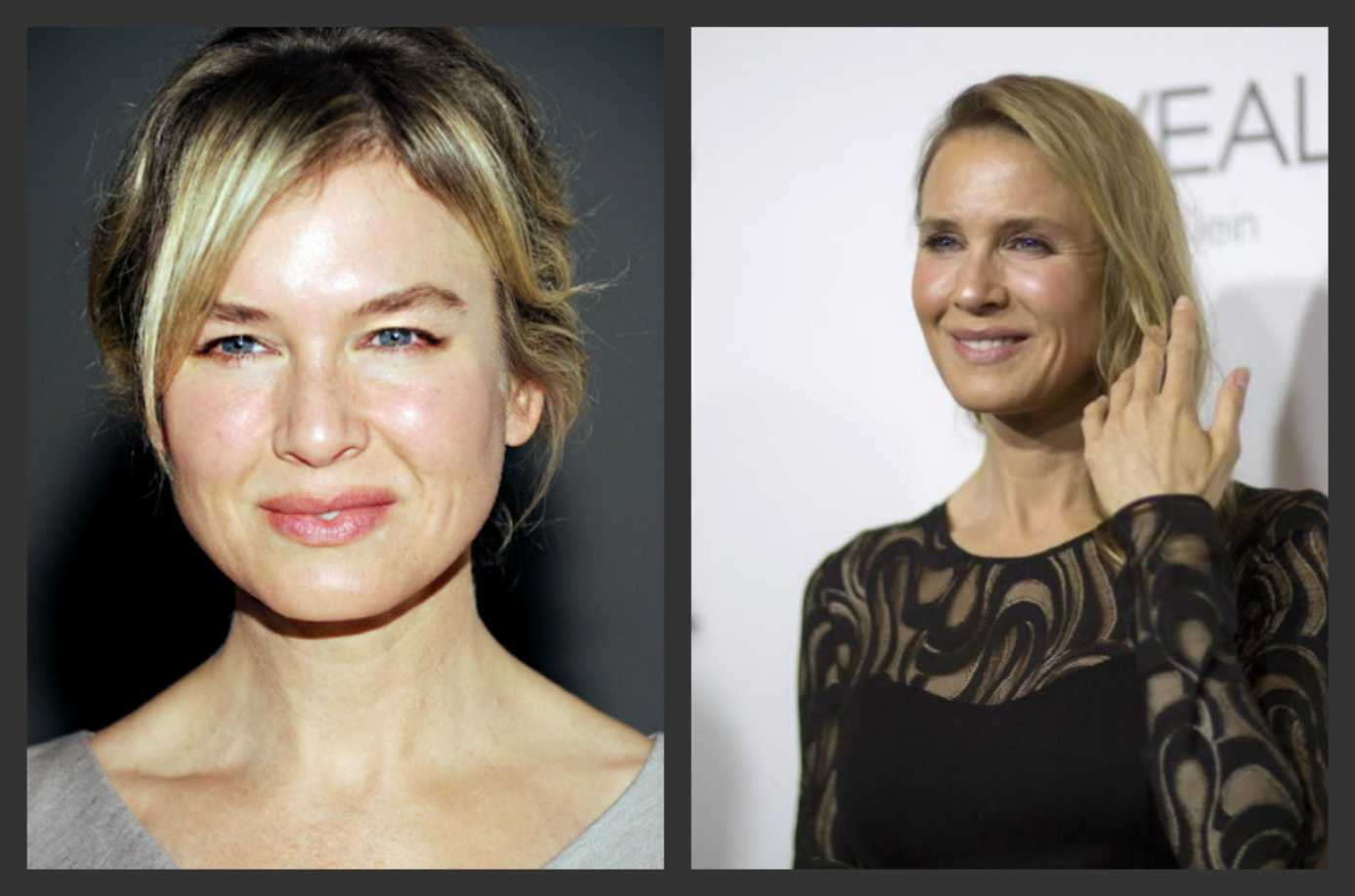Renee Zellweger's Latest Public Appearance Sparks Plastic Surgery Rumors | Renee Zellweger