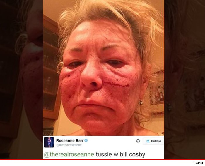 Roseanne Takes Jab At Bill Cosby With Photo Of Chemically Peeled Face | Roseanne
