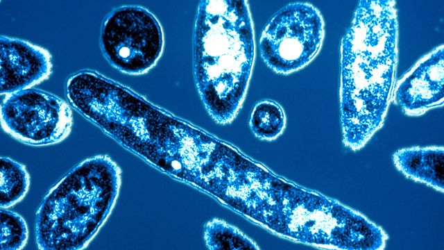Legionnaires' Disease Kills Three In New York City | Legionnaires' Disease