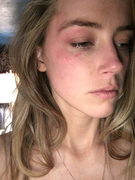 Amber Heard Filed For Divorce From Johnny Depp, Files For Restraining Order | Amber Heard